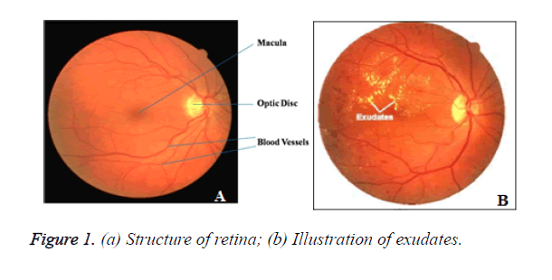 biomedres-Structure-retina