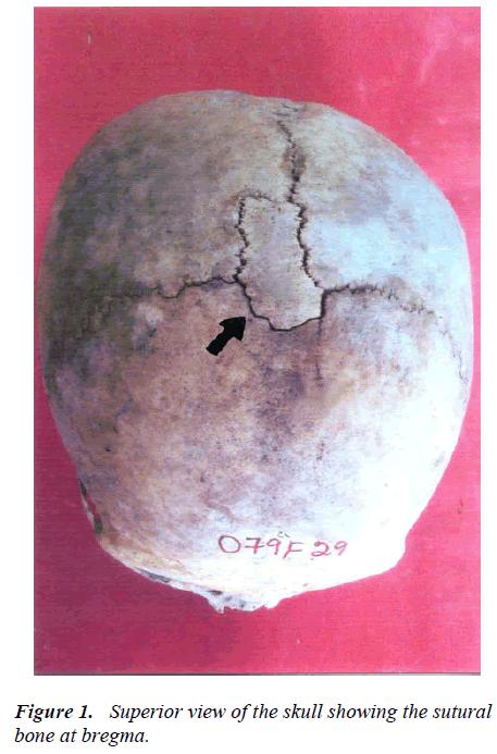 biomedres-Superior-skull-sutural-bone-bregma