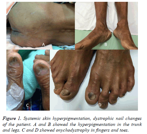 biomedres-Systemic-skin
