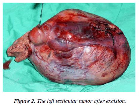 biomedres-The-left-testicular-tumor