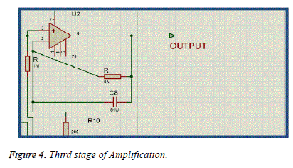 biomedres-Third-stage-Amplification