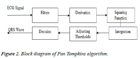 biomedres-Tompkins-algorithm