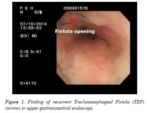 biomedres-Tracheoesophageal-Fistula