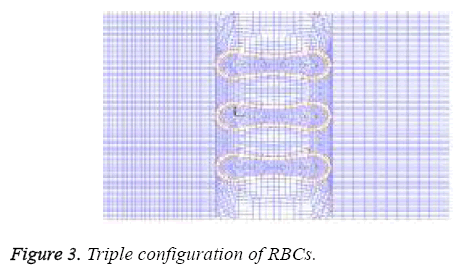biomedres-Triple-configuration-RBC