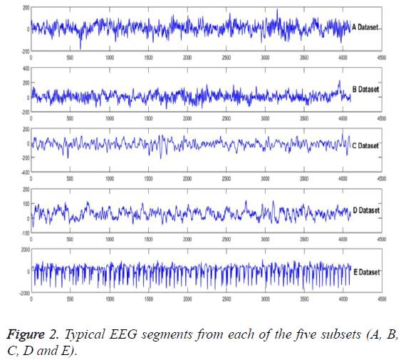 biomedres-Typical-EEG-segments