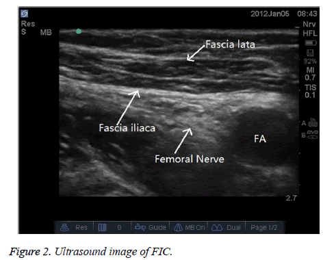 biomedres-Ultrasound-image