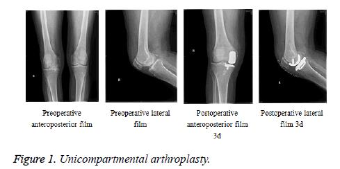 biomedres-Unicompartmental-arthroplasty