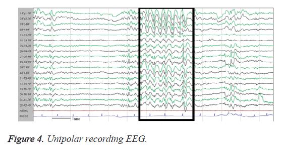 biomedres-Unipolar-recording-EEG