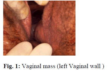 biomedres-Vaginal-mass