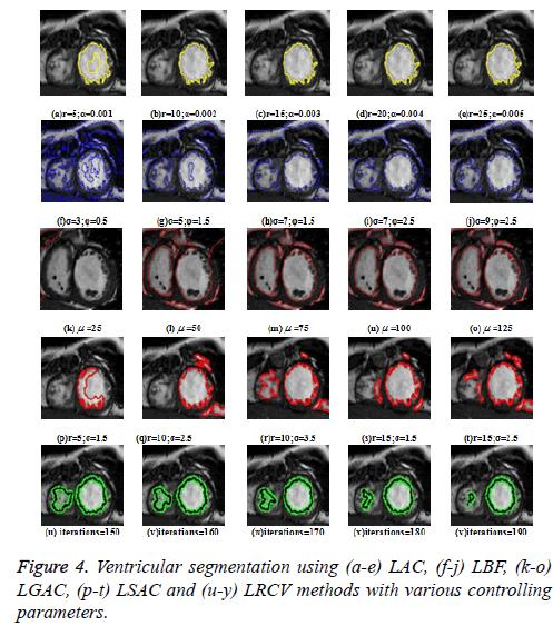 biomedres-Ventricular-segmentation