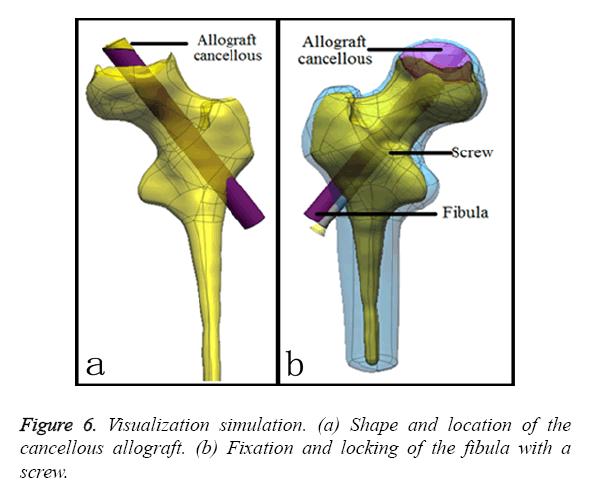 biomedres-Visualization-simulation