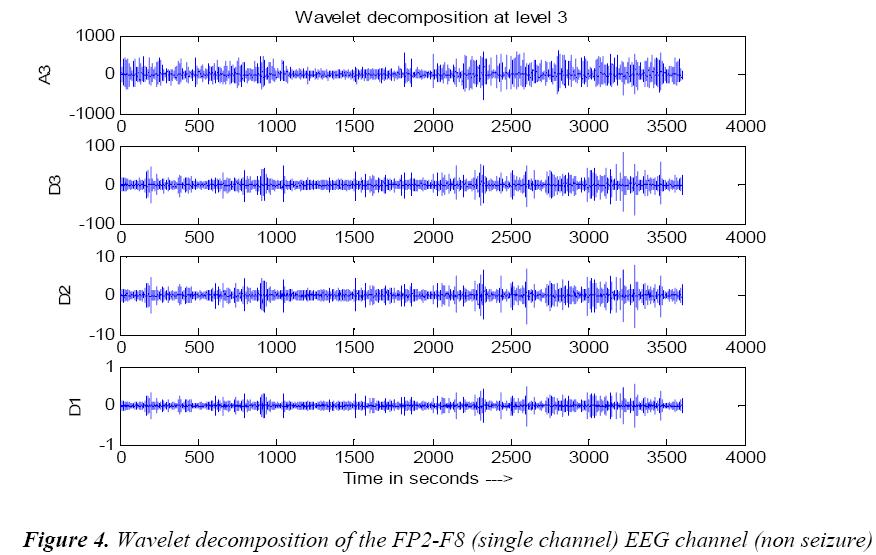 biomedres-Wavelet-decomposition-channel