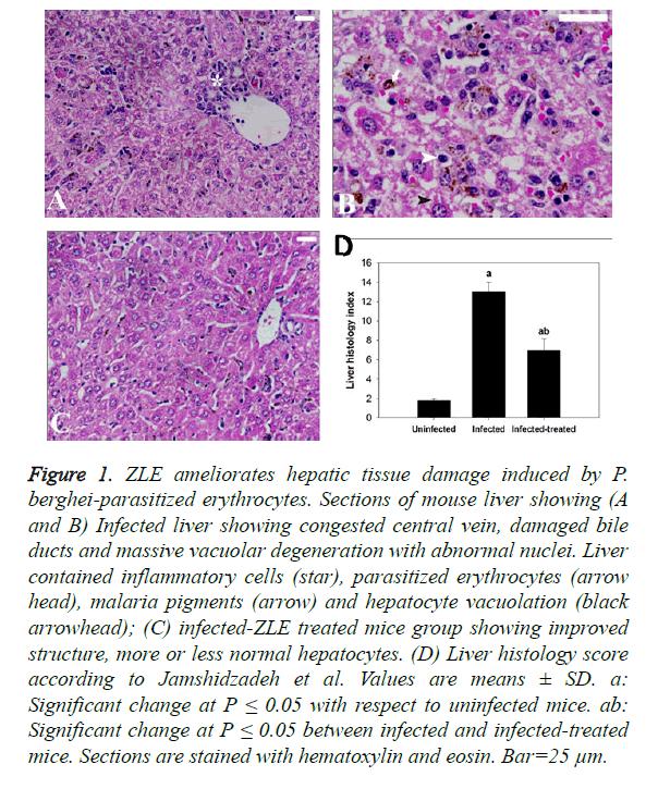 biomedres-ZLE-ameliorates-hepatic