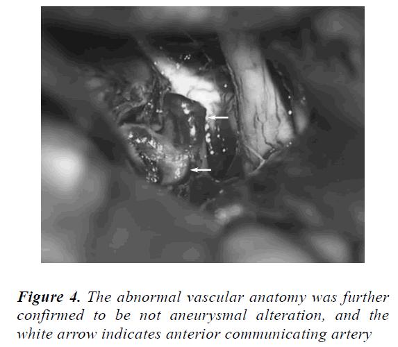 biomedres-abnormal-vascular