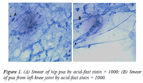 biomedres-acid-fast-stain