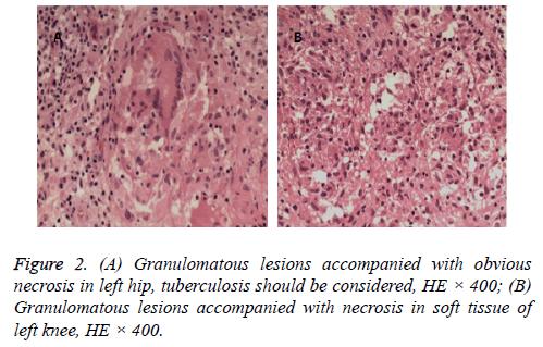 biomedres-acid-lesions