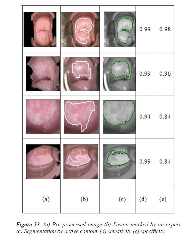 biomedres-active-contour
