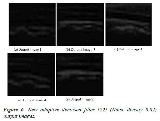 biomedres-adaptive-denoised
