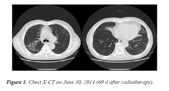 biomedres-after-radiotherapy