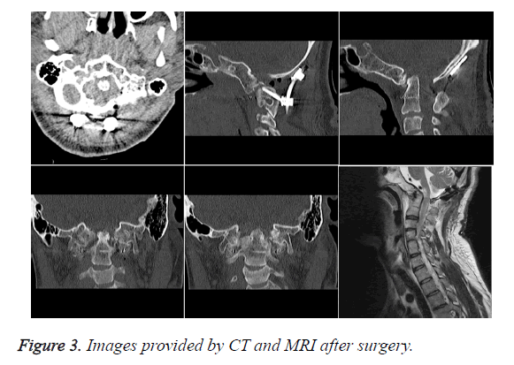 biomedres-after-surgery