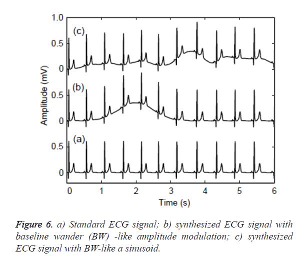 biomedres-amplitude-modulation