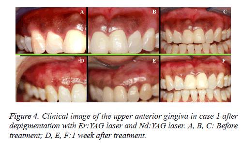 biomedres-anterior-gingiva