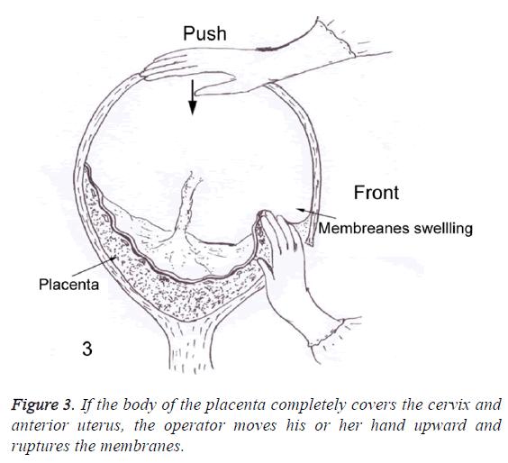 biomedres-anterior-uterus