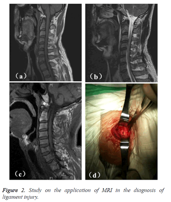 biomedres-application-MRI-diagnosis