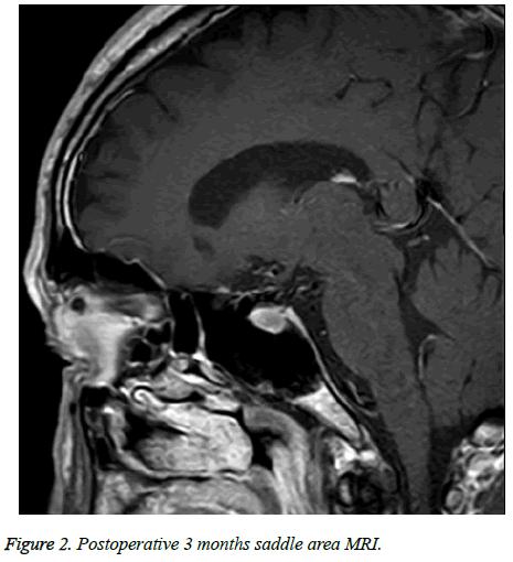 biomedres-area-MRI