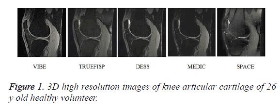 biomedres-articular-cartilage