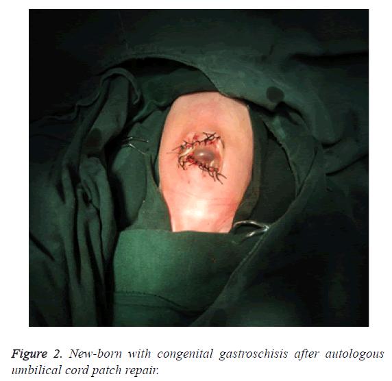 biomedres-autologous-umbilical-cord
