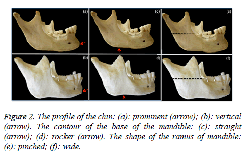 biomedres-base-mandible