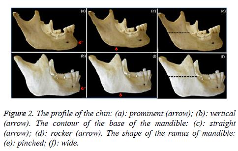 biomedres-base-mandible