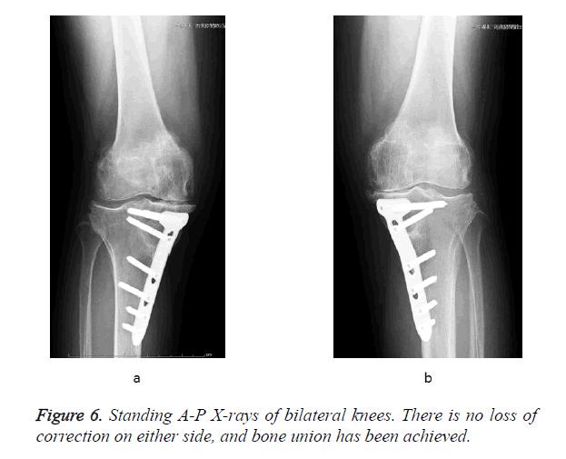 biomedres-bilateral-knees