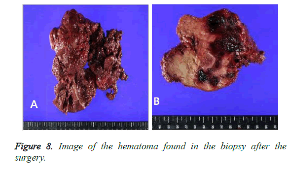 biomedres-biopsy-hematoma