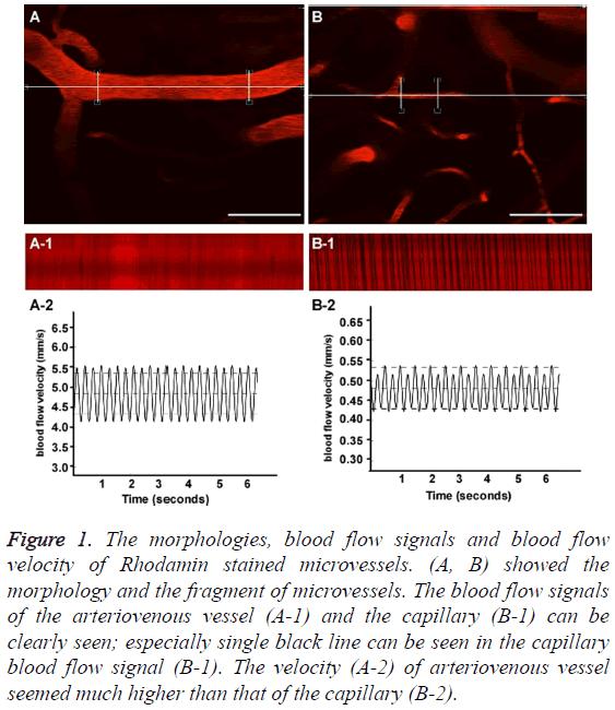 biomedres-blood-flow-signals