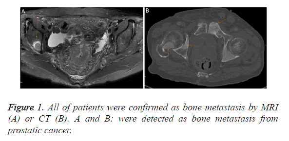 biomedres-bone-metastasis