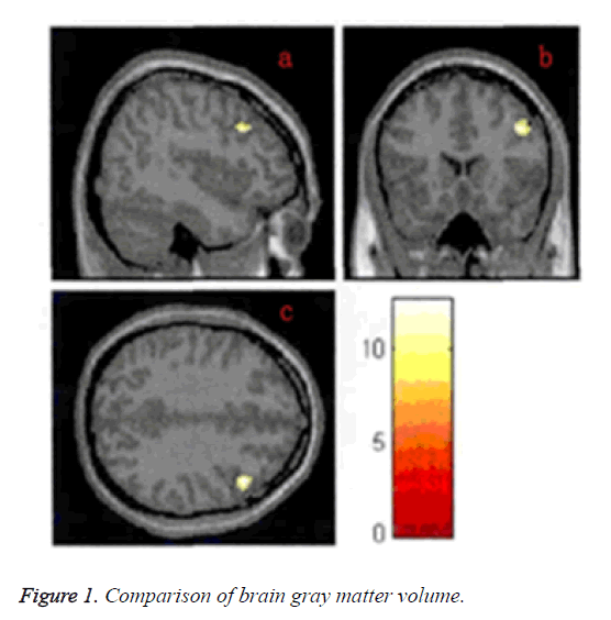 biomedres-brain-gray-matter-volume