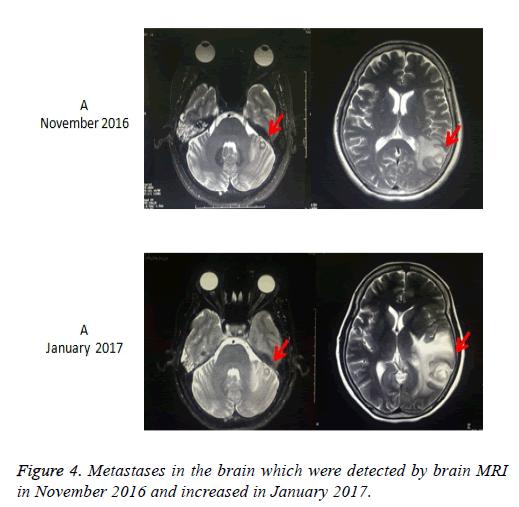 biomedres-brain-nodules