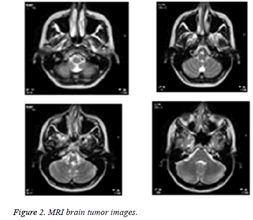 biomedres-brain-tumor