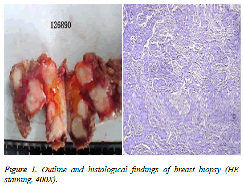 biomedres-breast-biopsy