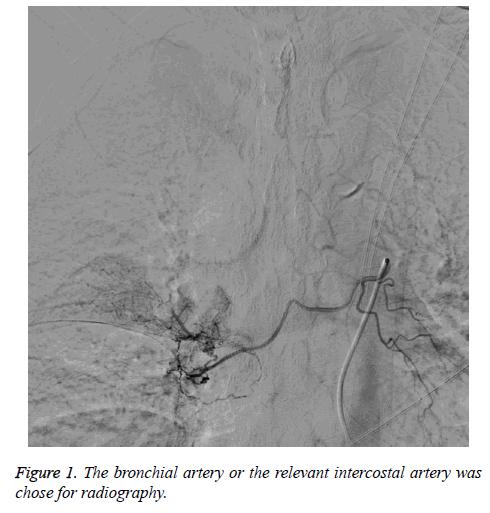 biomedres-bronchial-artery