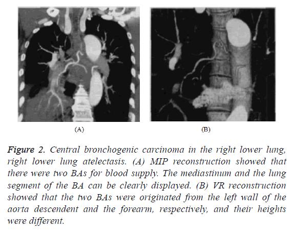 biomedres-bronchogenic-carcinoma
