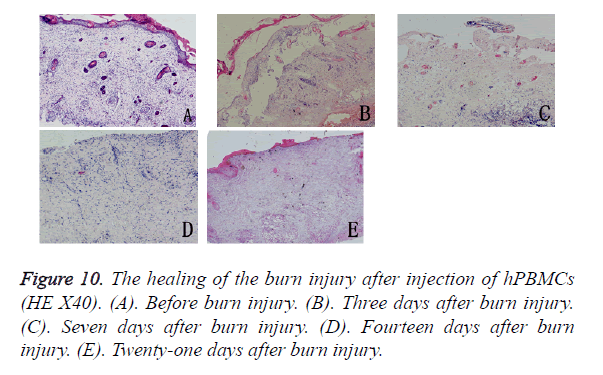 biomedres-burn-injury