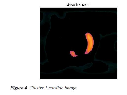 biomedres-cardiac-image