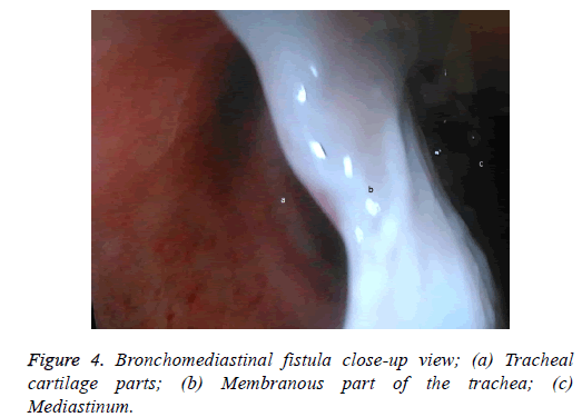 biomedres-cartilage-parts