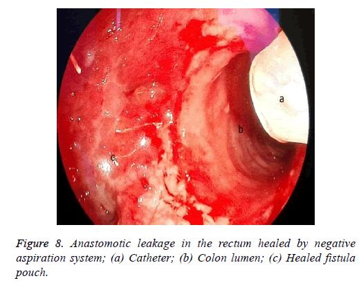 biomedres-catheter-tube
