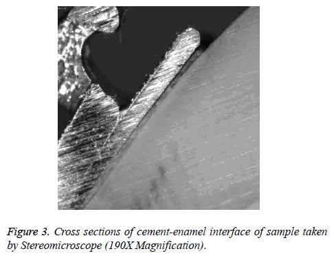 biomedres-cement-enamel-interface