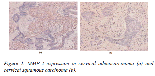 biomedres-cervical-squamous
