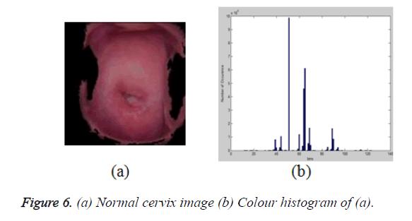 biomedres-cervix-image